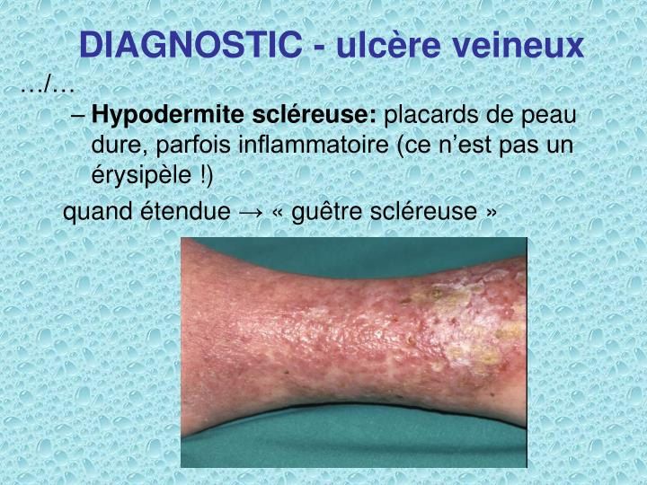 DIAGNOSTIC - ulcère veineux