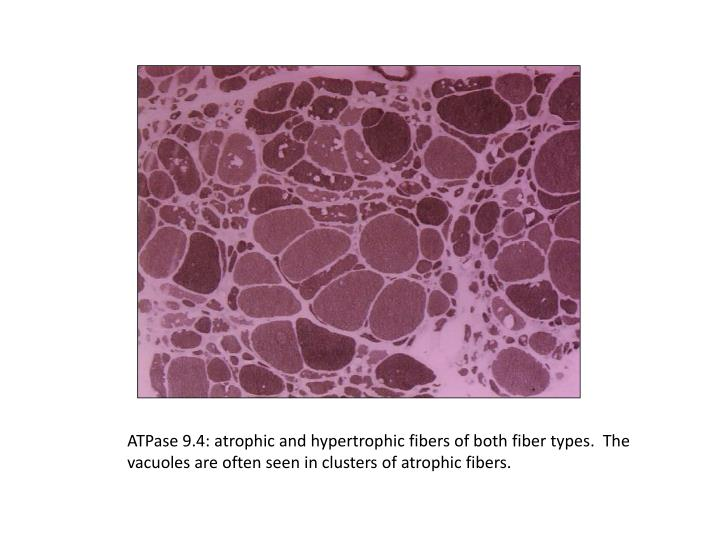 ATPase 9.4: atrophic and hypertrophic fibers of both fiber types.  The vacuoles are often seen in clusters of atrophic fibers.