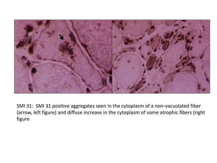 SMI 31:  SMI 31 positive aggregates seen in the cytoplasm of a non-vacuolated fiber (arrow, left figure) and diffuse increase in the cytoplasm of some atrophic fibers (right figure