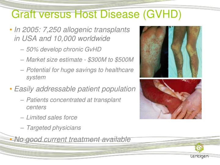 Graft versus Host Disease (GVHD)