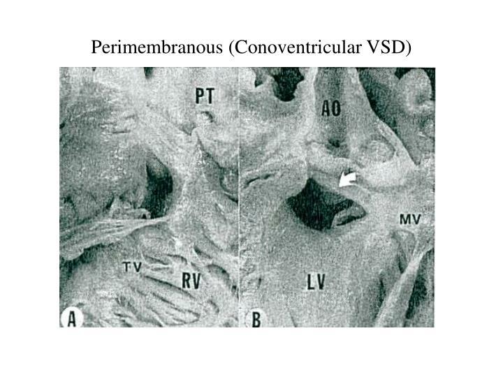 Perimembranous (Conoventricular VSD)