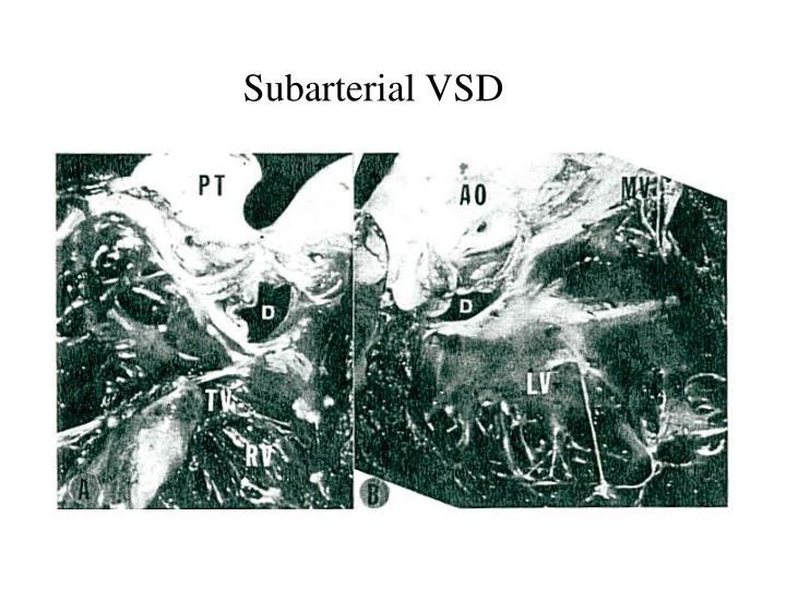 Subarterial VSD