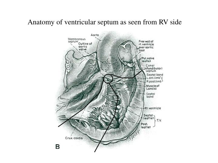 Anatomy of ventricular septum as seen from RV side