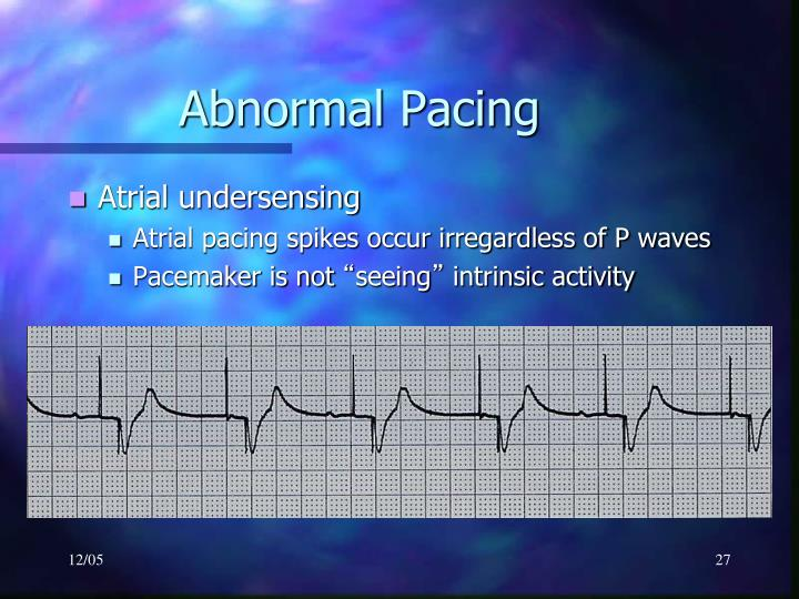 Abnormal Pacing