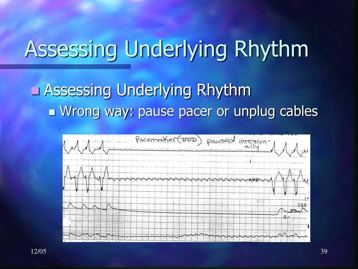 Assessing Underlying Rhythm