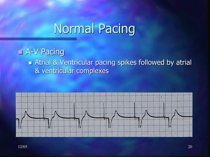 Normal Pacing