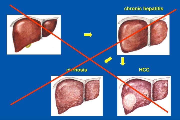 chronic hepatitis