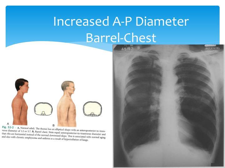 Increased A-P Diameter