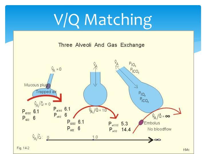 V/Q Matching