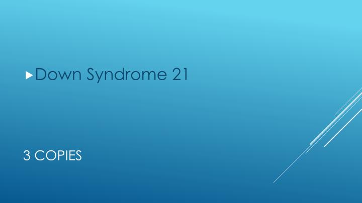 Down Syndrome 21