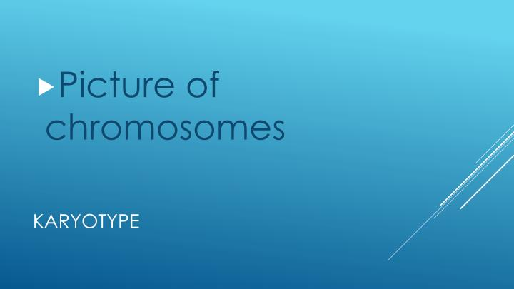 Picture of chromosomes