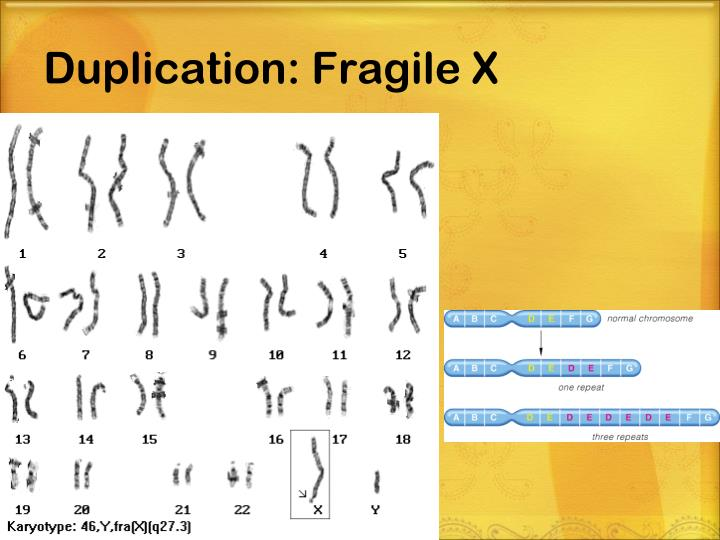 Duplication: Fragile X