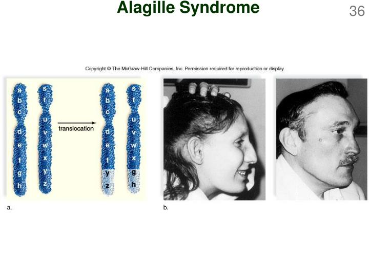 Alagille Syndrome
