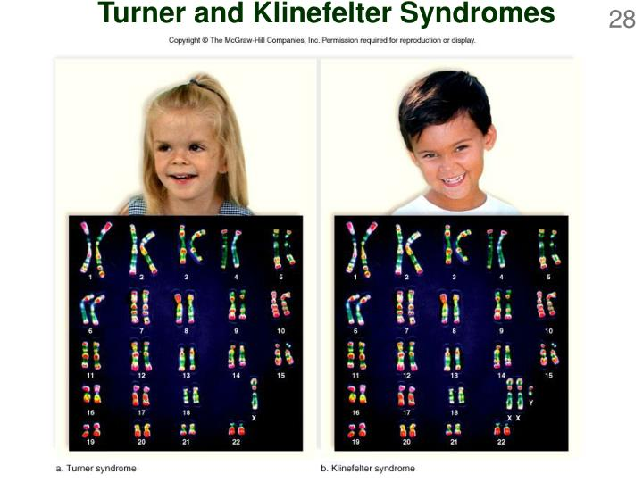 Turner and Klinefelter Syndromes