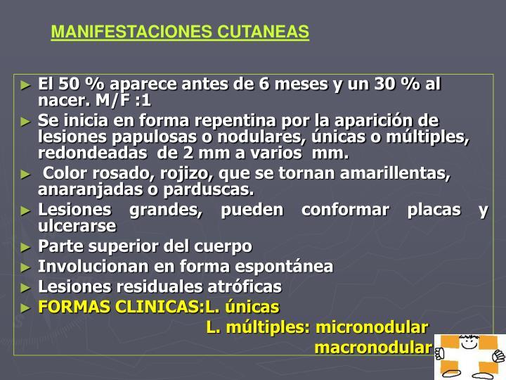 MANIFESTACIONES CUTANEAS