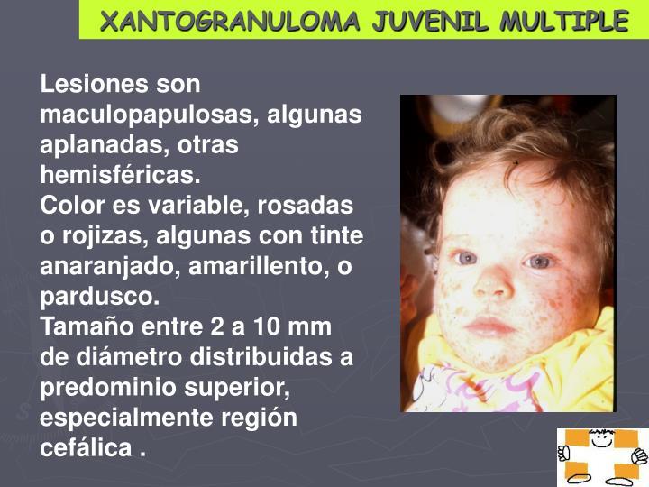 XANTOGRANULOMA JUVENIL MULTIPLE