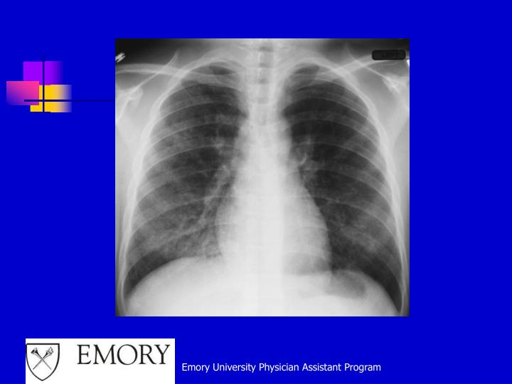 Emory University Physician Assistant Program
