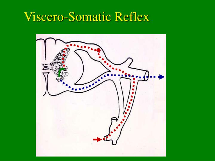 Viscero-Somatic Reflex