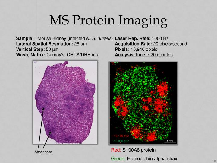 MS Protein Imaging