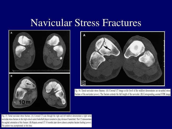 Navicular Stress Fractures