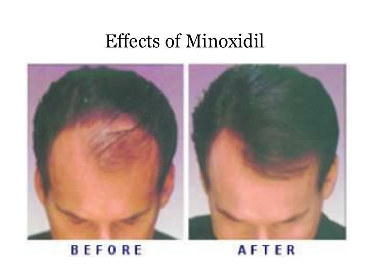 Effects of Minoxidil