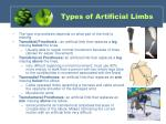 types of artificial limbs