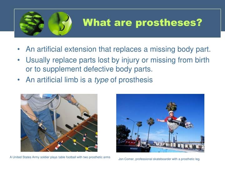 What are prostheses?