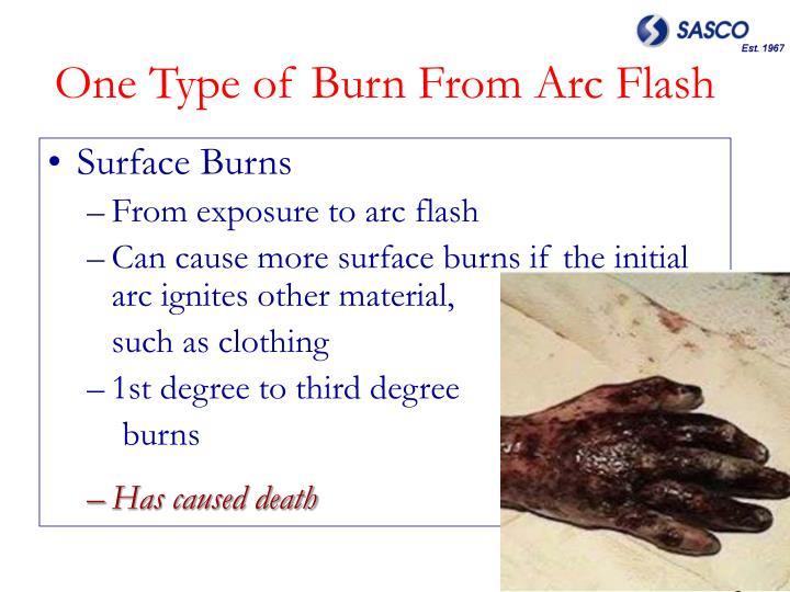One Type of Burn From Arc Flash
