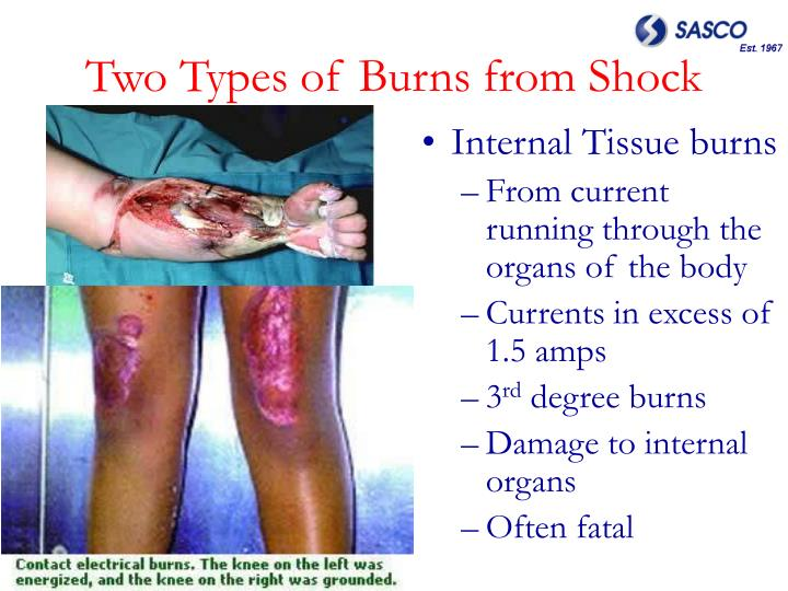Two Types of Burns from Shock