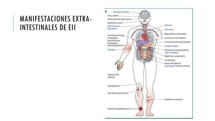 Manifestaciones extra- intestinales de EII