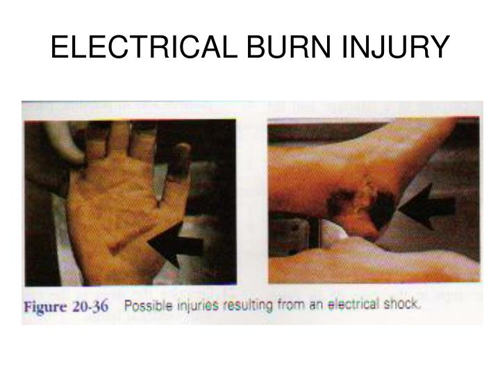 ELECTRICAL BURN INJURY