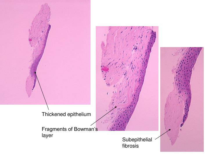 Thickened epithelium