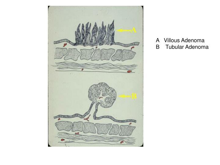 A   Villous Adenoma