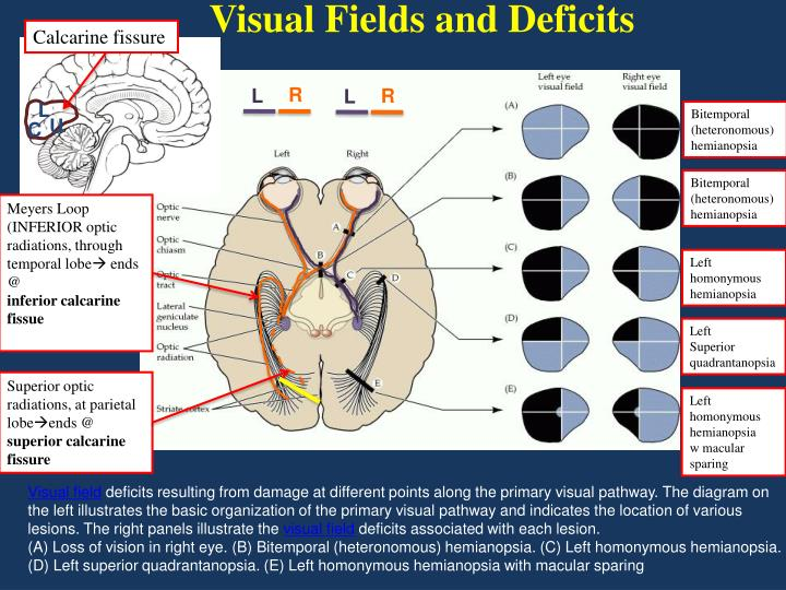 Visual Fields and Deficits