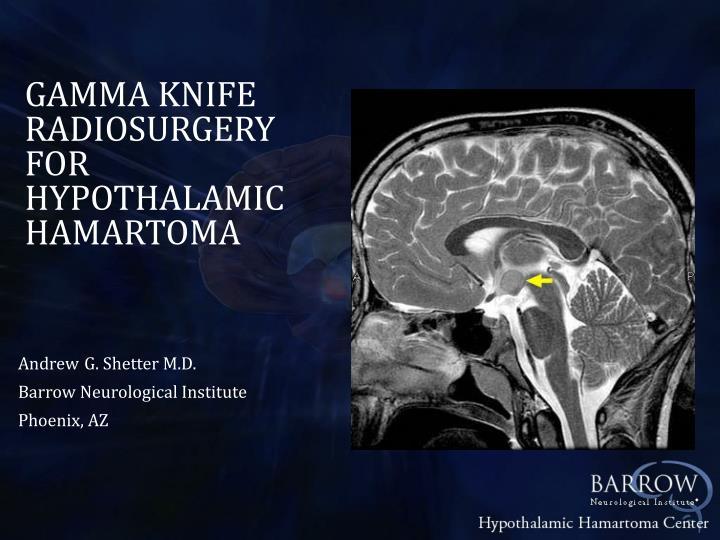 GAMMA KNIFE RADIOSURGERY FOR HYPOTHALAMIC HAMARTOMA