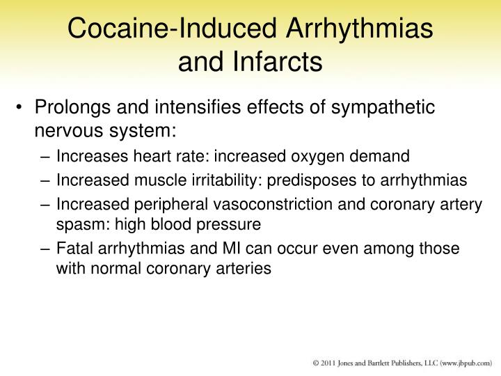 Cocaine-Induced Arrhythmias and Infarcts