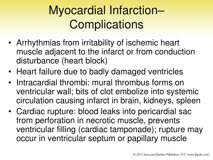 Myocardial Infarction– Complications