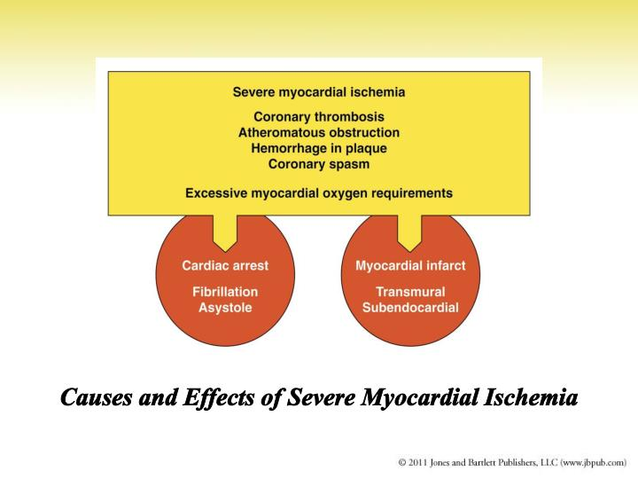 Causes and Effects of Severe Myocardial Ischemia