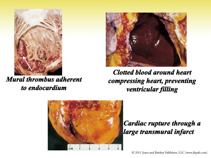Clotted blood around heart compressing heart, preventing