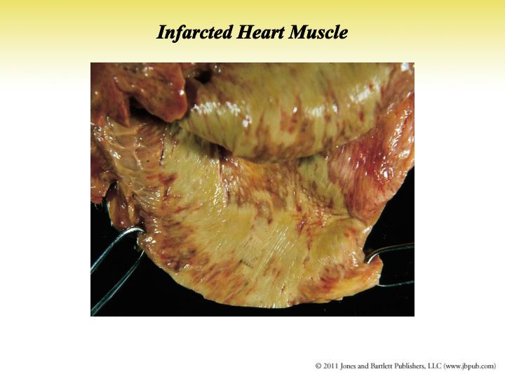 Infarcted Heart Muscle