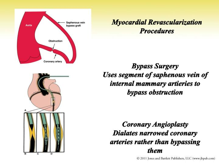 Myocardial Revascularization Procedures