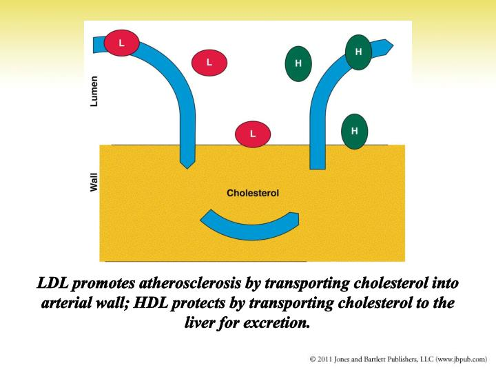 LDL promotes atherosclerosis by transporting cholesterol into arterial wall; HDL protects by transporting cholesterol to the liver for excretion.