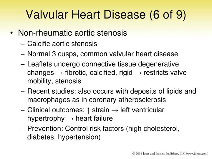 Valvular Heart Disease (6 of 9)