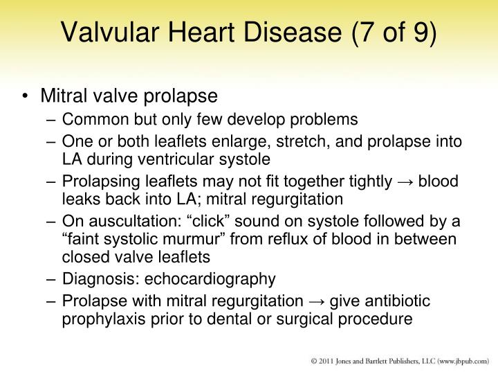 Valvular Heart Disease (7 of 9)