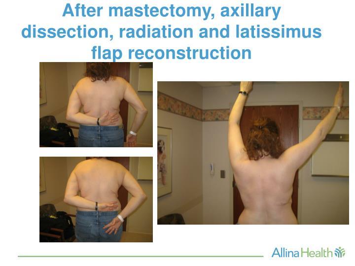 Ppt Breast Cancer Rehabilitation Powerpoint Presentation