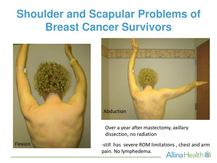 lower back breast cancer pain severe