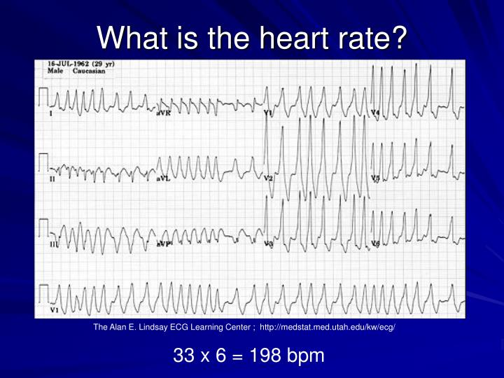 What is the heart rate?