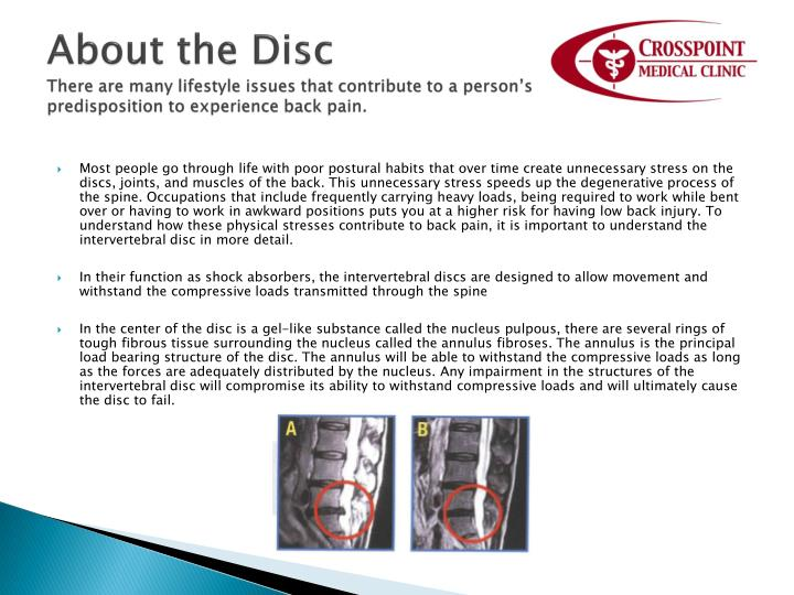 About the Disc