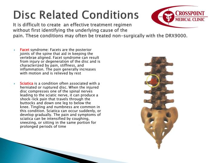 Disc Related Conditions