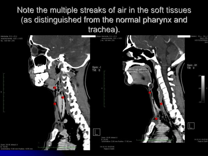 Note the multiple streaks of air in the soft tissues (as distinguished from the normal pharynx and trachea).